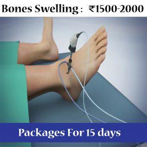 Bones Swelling